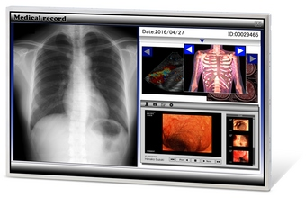 New 30 inch panel for Medical use. article image